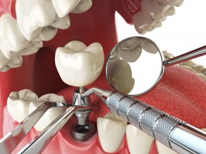 dental-implant-concept-825x619